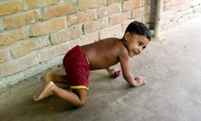 মাতৃগর্ভে গুলিবিদ্ধ সুরাইয়া ৪ বছরেও হাঁটতে শেখেনি